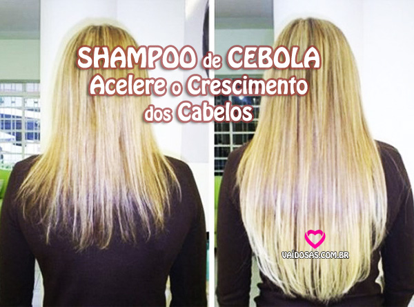 shampoo de cebola cresce o cabelo